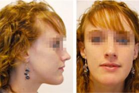 chirurgien-maxillo-facial-paris-dr-loncle-avant-apres