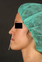 Class III Chirurgien Maxillo Facial Paris Neuilly