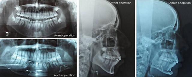 Genioplastie Chin Wing Radios Menton En Avant Genioplastie Chirurgien Maxillo-Facial Paris