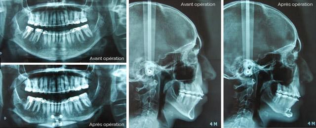 Genioplastie Osteotomie Menton Radios Menton En Avant Genioplastie Chirurgien Maxillo-Facial Paris
