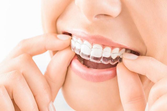 Orthodontie Et Chirurgie Maxillo Faciale Gouttières Invisalign