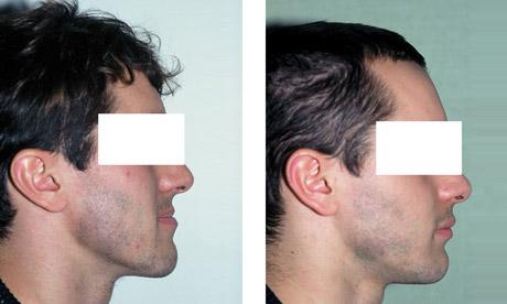 Patient Classe 3 Chirurgie Maxillo Faciale 2