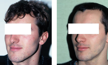Patient Classe 3 Chirurgie Maxillo Faciale 3
