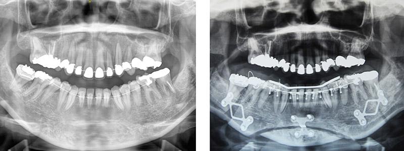Classe I Squelettique Et Une Classe Iii Dentaire 3