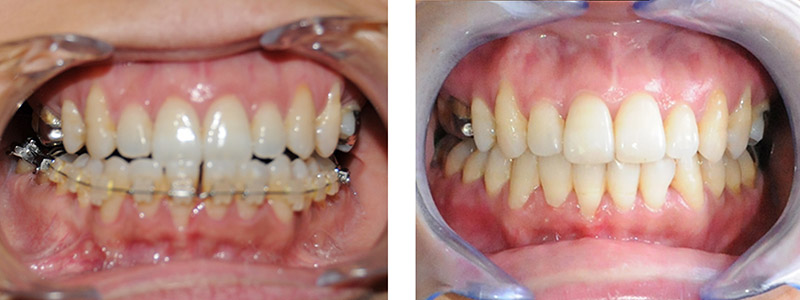 Classe I Squelettique Et Une Classe Iii Dentaire 5