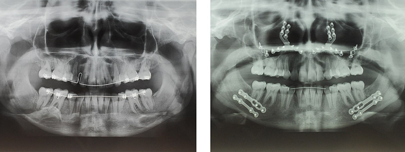 Classe Ii Squelettique Traitée Par Avancement Bi Maxillaire 2