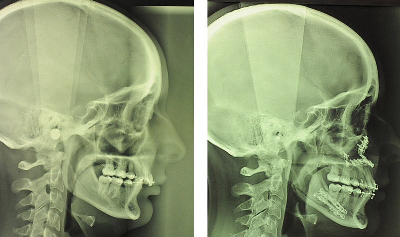 Classe Ii Squelettique Traitée Par Avancement Bi Maxillaire