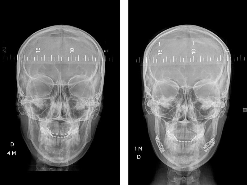 Classe Ii Squelettique Traitée Par Avancement Mandibulaire Avec Rotation Anti Horaire De La Mandibule 3