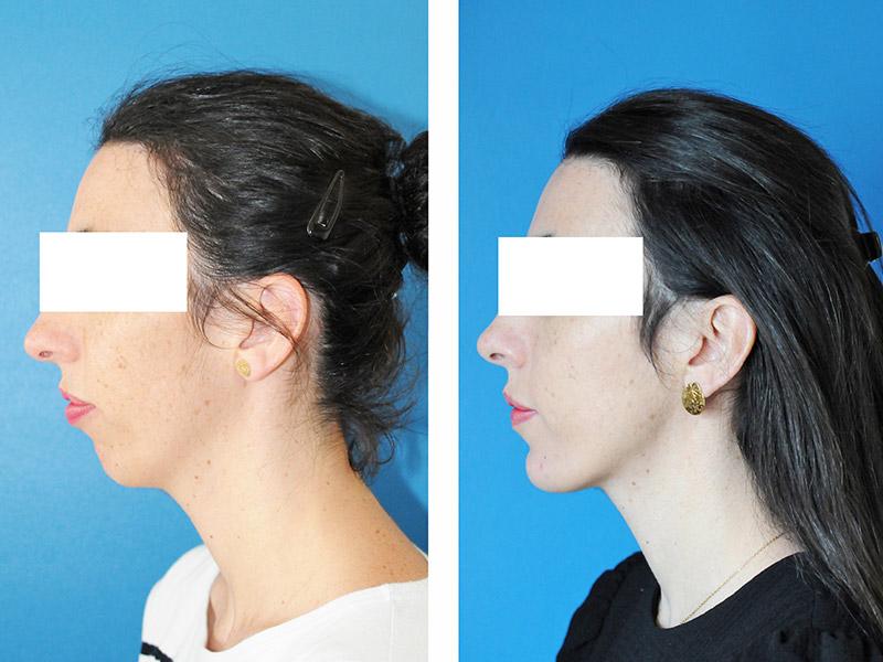 Classe Ii Squelettique Traitée Par Ostéotomie Bi Maxillaire 2