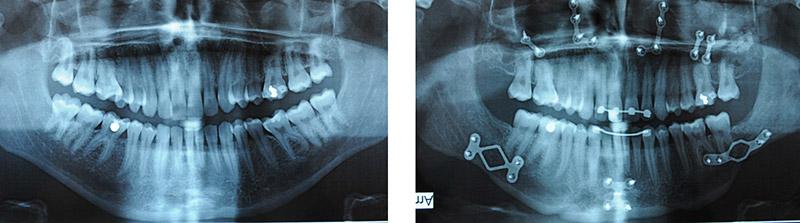 chirurgie du menton Paris génioplastie