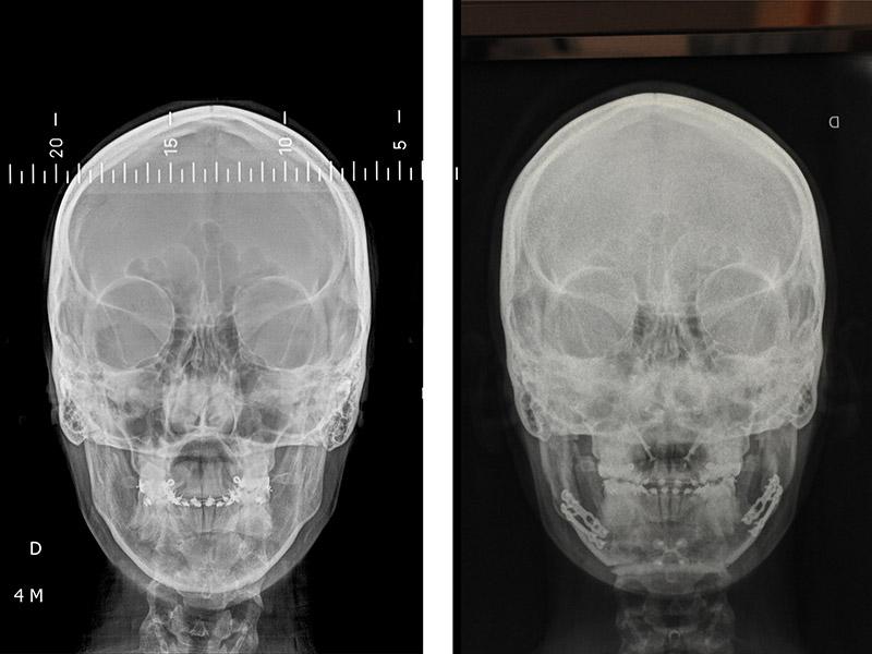Classe Ii Squelettique Traitée Par Ostéotomie Bi Maxillaire Avec Impaction Maxillaire 4