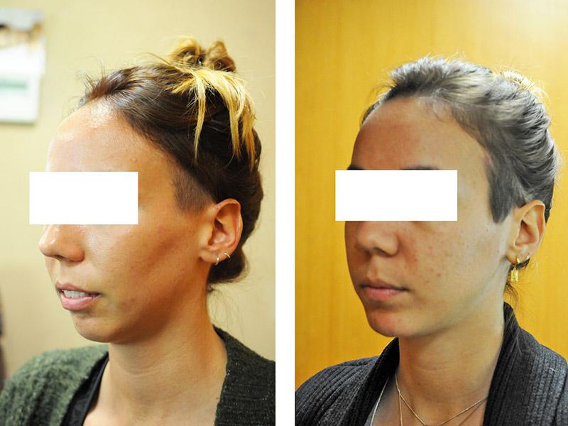 Classe Ii Squelettique Traitée Par Ostéotomie Bi Maxillaire Avec Impaction Maxillaire 5