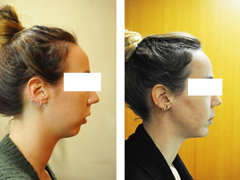 Classe Ii Squelettique Traitée Par Ostéotomie Bi Maxillaire Avec Impaction Maxillaire 6