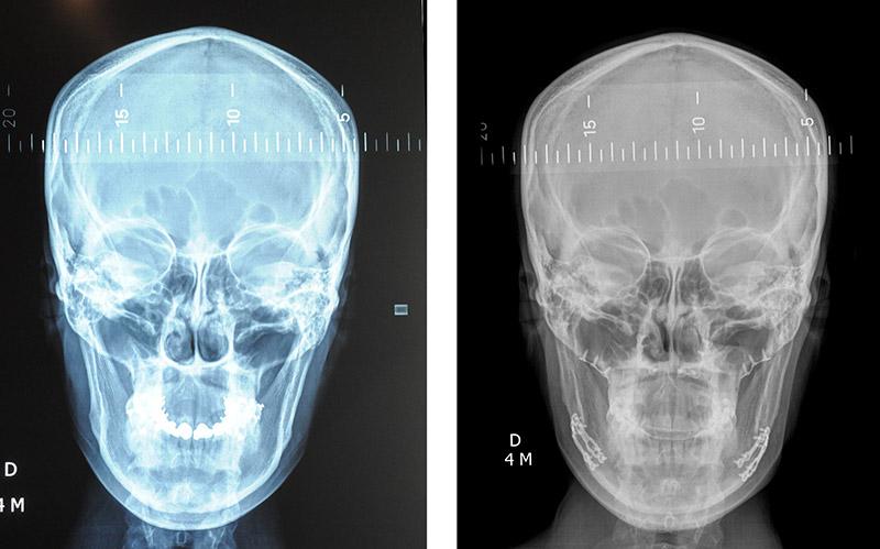 Classe Ii Squelettique Traitée Par Ostéotomie Bi Maxillaire D'avancée 4
