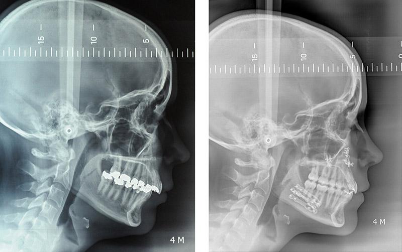 Classe Ii Squelettique Traitée Par Ostéotomie Bi Maxillaire D'avancée