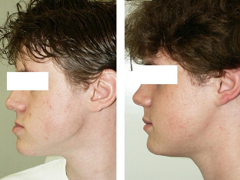 Classe Iii Avec Hypodéveloppement Du Maxillaire Traitée Par Ostéotomie Bi Maxillaire 3