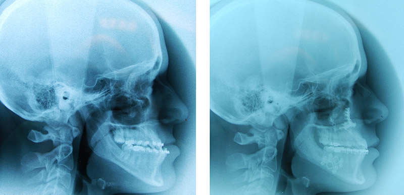 Classe Iii Avec Hypodéveloppement Du Maxillaire Traitée Par Ostéotomie Bi Maxillaire