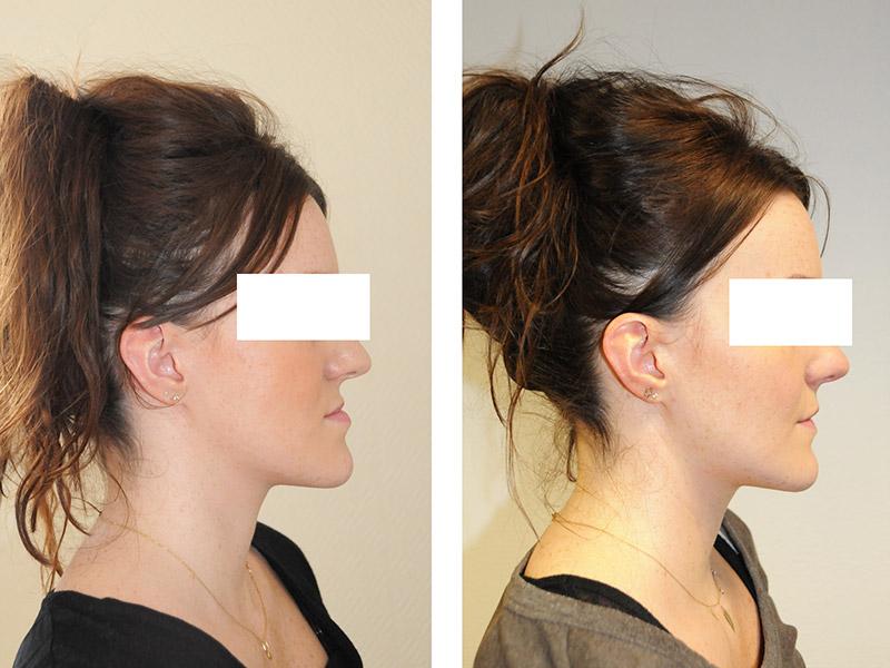 Classe Iii Avec Un Hypodéveloppement Du Maxillaire Traitée Par Ostéotomie Bi Maxillaire Avec Génioplastie 2