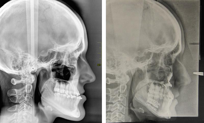 Classe Iii Avec Un Hypodéveloppement Du Maxillaire Traitée Par Ostéotomie Bi Maxillaire Avec Génioplastie