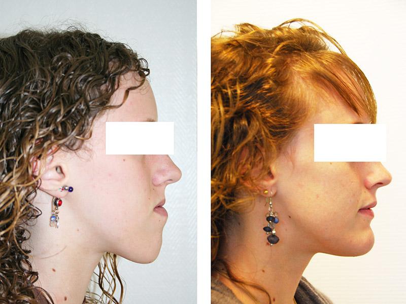Classe Iii Traitée Par Une Ostéotomie Bi Maxillaire Avec Génioplastie 2