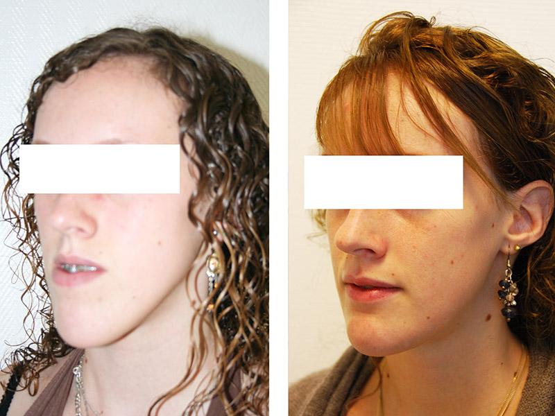 Classe Iii Traitée Par Une Ostéotomie Bi Maxillaire Avec Génioplastie 3