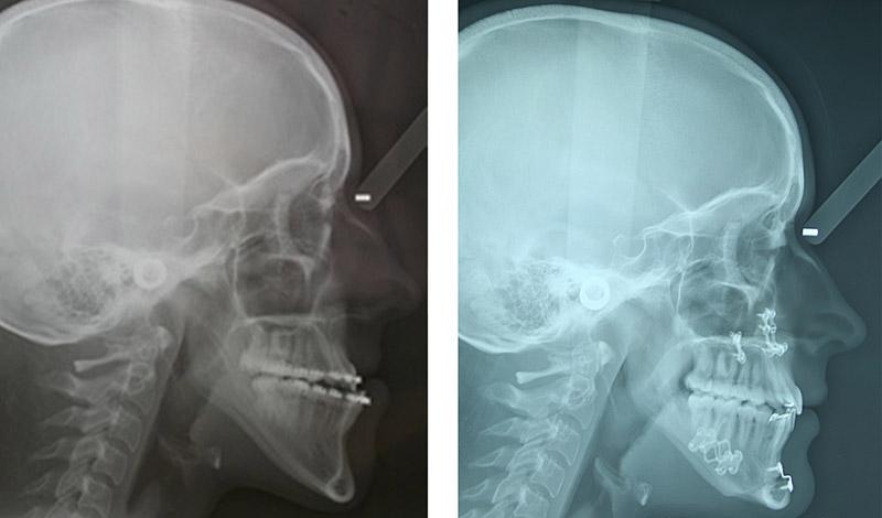 Classe Iii Traitée Par Une Ostéotomie Bi Maxillaire Avec Génioplastie