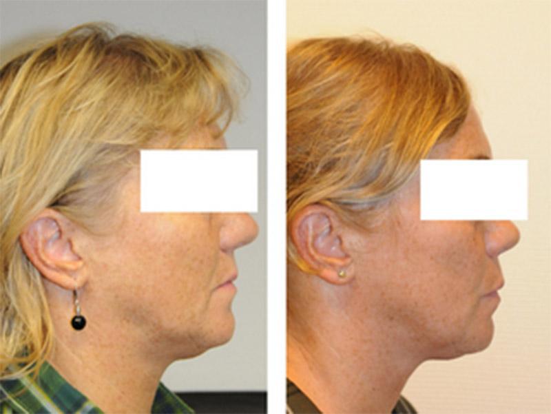 Témoignage D'une Patiente Atteinte D'apnée Du Sommeil 2