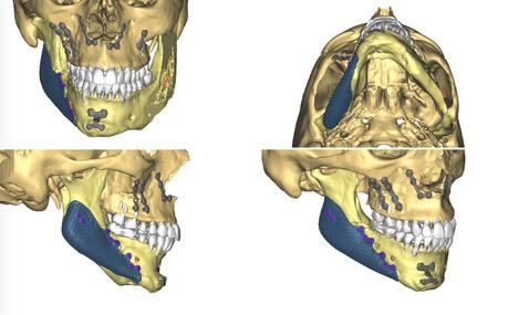 Implants Mandibulaires 2