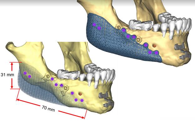 Implants Mandibulaires 3