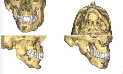 Implants Mandibulaires