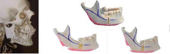 Modification Personnelle Osteotomie Mandibulaire
