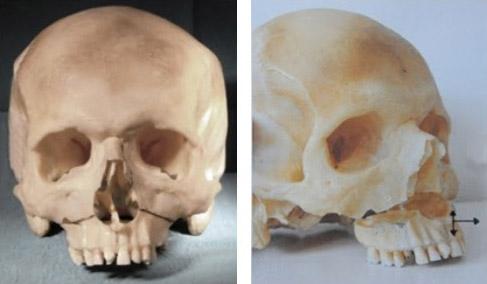 Osteotomie Lefort