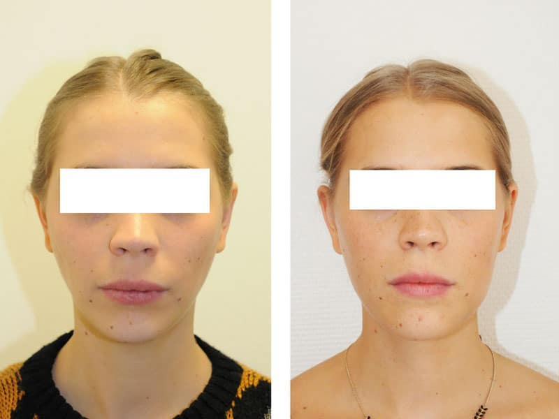 Face Visage Small Size