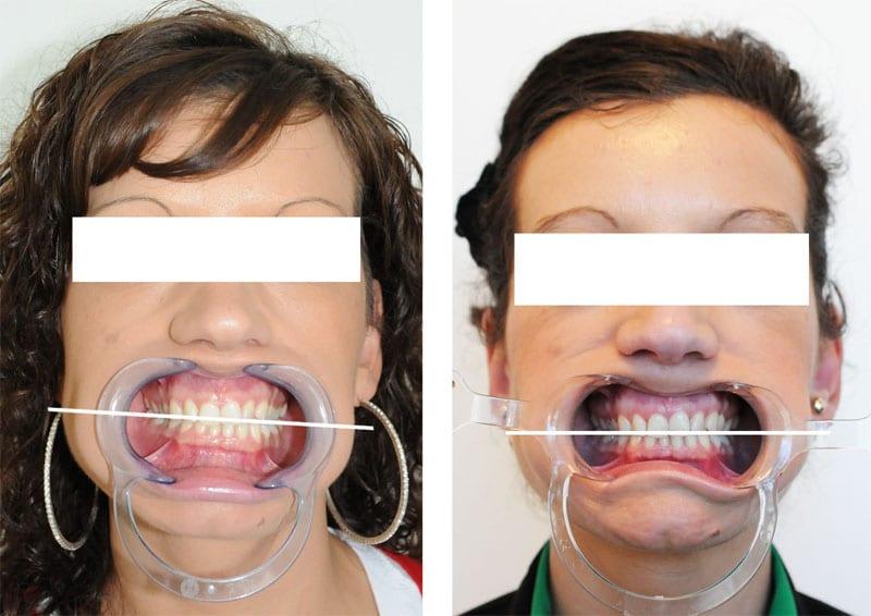Face Occlusion Condyle