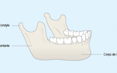 Hypercondylie mandibulaire : présentation, diagnostic et traitement5 (3)