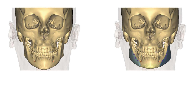 implants 3D et génioplastie dr loncle chirurigen paris