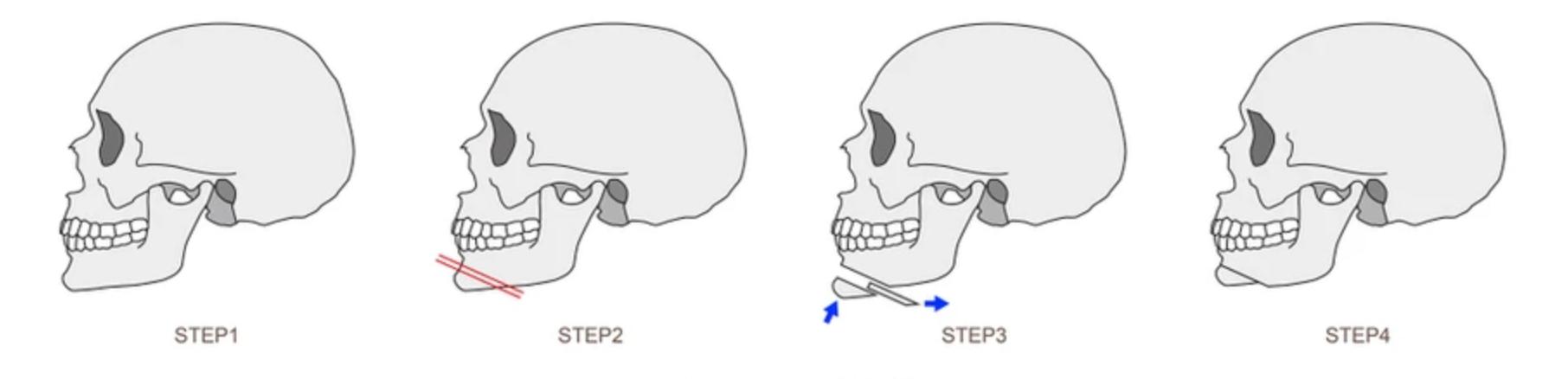 genioplastie chirurgie du menton