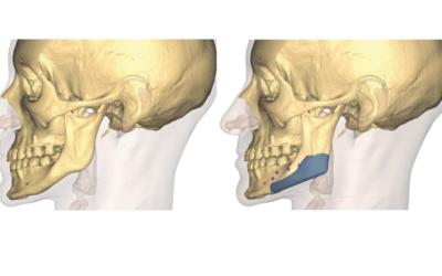 Angles mandibulaires : présentation, diagnostic et traitement5 (3)