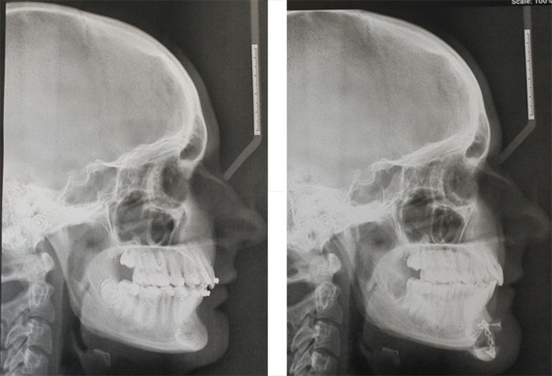 chirurgie du menton radiographies profil avant apres chirurgie du menton abaissement recul