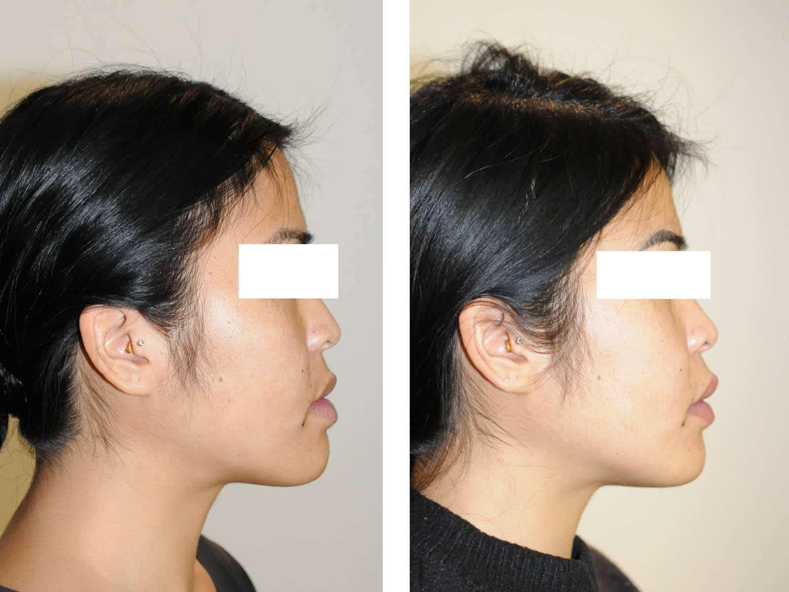 cas chirurgie apnee du sommeil avancement maxillaire profil
