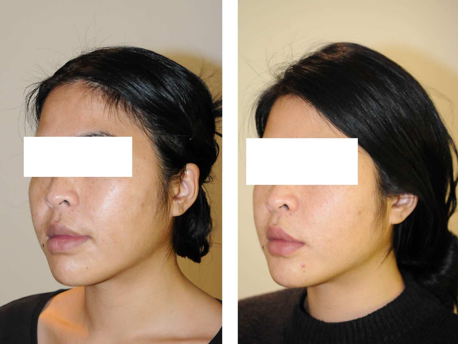 cas chirurgie apnee du sommeil avancement maxillaire trois quart