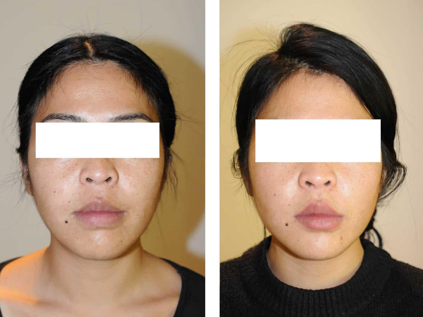 cas chirurgie apnee du sommeil avancement maxillaire vue de face