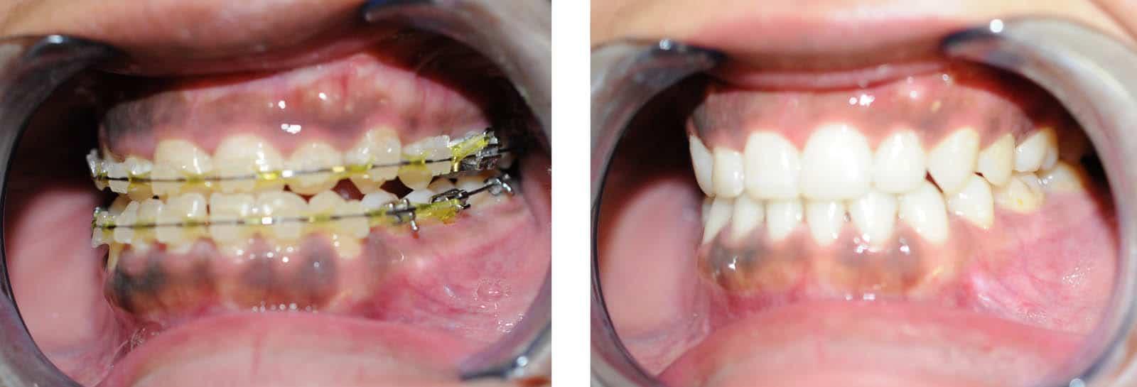 cas chirurgie apnee du sommeil avancement maxillaire vue intra orale