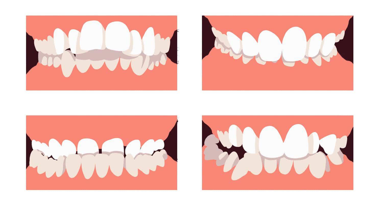 orthodontie et chirurgie maxillo faciale