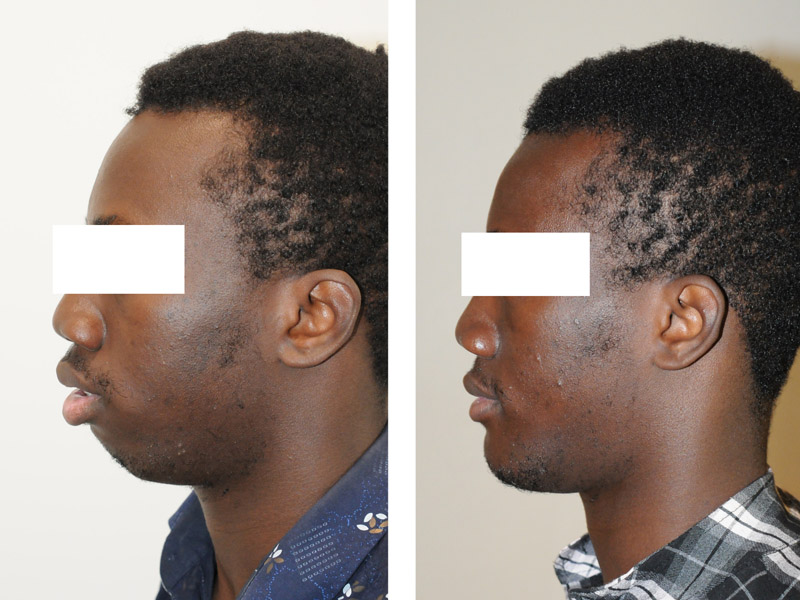 genioplastie chirurgie du menton paris menton fuyant menton en retrait et chirurgie bimaxillaire avancement paris 3