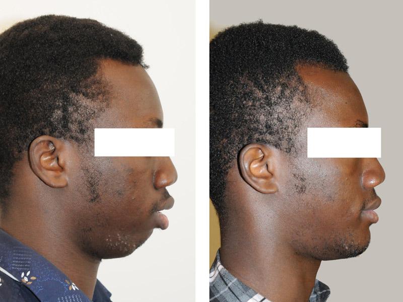 genioplastie chirurgie du menton paris menton fuyant menton en retrait et chirurgie bimaxillaire avancement paris 2