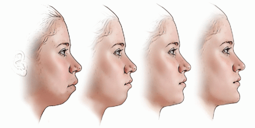 genioplastie chirurgie du menton paris menton fuyant menton en retrait genioplastie genioplasty loncle paris