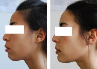 genioplastie reduction hauteur et avancee chirurgien paris menton 3