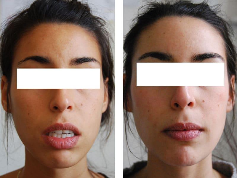 genioplastie reduction hauteur et avancee chirurgien paris menton 4
