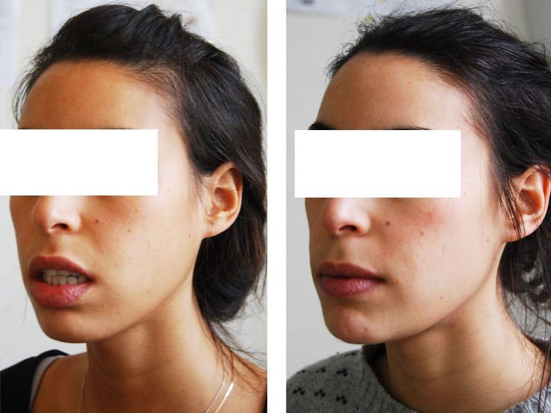 genioplastie reduction hauteur et avancee chirurgien paris menton 5